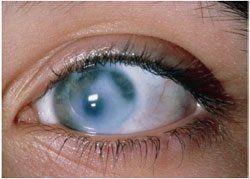Нові методи лікування глаукоми