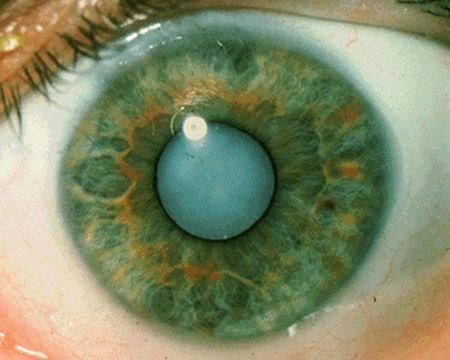 Про помутнении кришталика ока