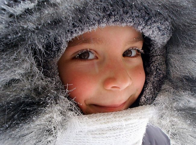 Обмороження щоки у дитини: що робити?