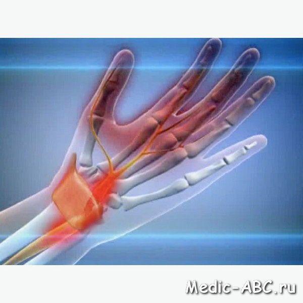 Оніміння або набряк кисті рук?