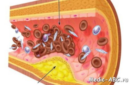 Основні причини розвиток атеросклерозу