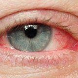 Гостра і хронічна вірусна інфекція очей
