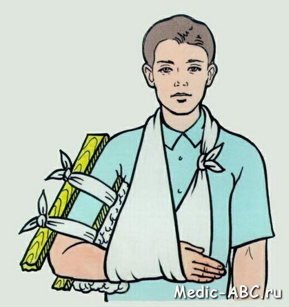 Перелом руки, зап'ястя, ліктя