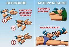 Принцип надання першої допомоги при венозній і артеріальній кровотечах