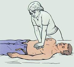 Непрямий масаж серця - перша допомога при нещасному випадку, якщо немає дихання