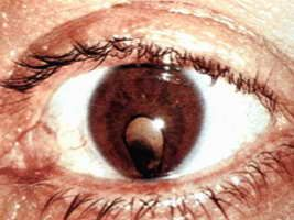 симптоми катаракти