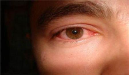 Чому очі дорослого завжди червоні
