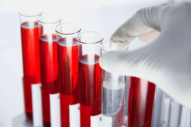 Нейтрофилы - это те клетки, которые принадлежат к лейкоцитам