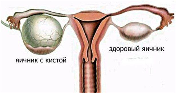 Прискорене безболісне сечовипускання у жінок: у чому небезпека даного симптому?