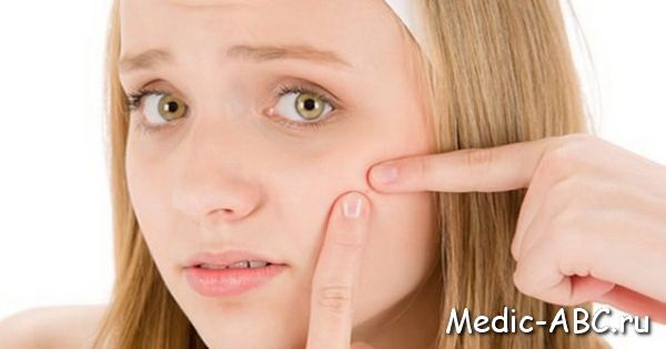 Чому на обличчі з'являються дрібні прищі?