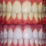 Показання і протипоказання до відбілювання зубів