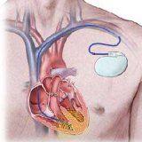 Прилади екс для роботи серця