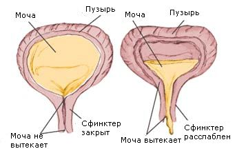 Причини і лікування частого сечовипускання