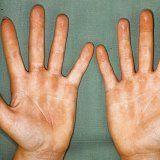 Причини і симптоми контактної алергії