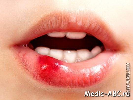 Причини утворення жировик на губах