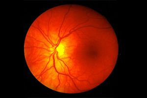 Ангіопатія судин сітківки ока