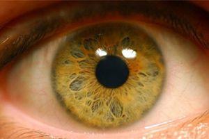 Ангіопатія сітківки ока