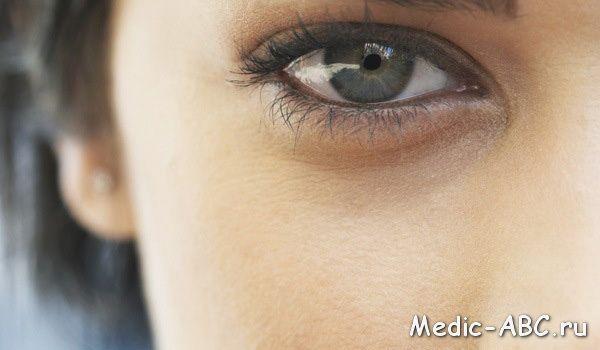 Причини темних кіл під очима