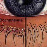 Причини виникнення і різновиди блефарити