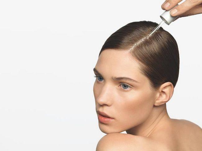 Випадання волосся: лікування