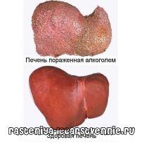 Ознаки алкогольного цирозу печінки