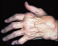 Ревматоїдний артрит симптоми і лікування