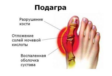 великого пальця ноги