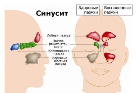 Синусит. Симптоми у дорослих: ворога треба знати в обличчя