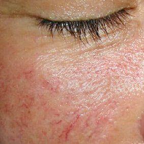 Судинна сіточка лікування купероза