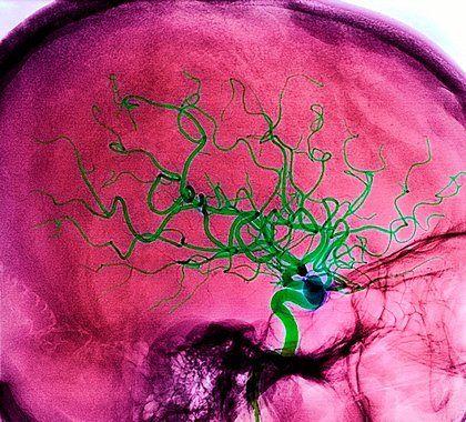 Сучасне лікування гострого порушення мозкового кровообігу