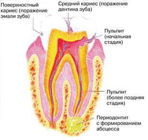 Стадії карієсу, або чому болять зуби