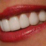 Ретельне відбілювання зубів у людини