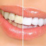 Зміцнення емалі зубів людини