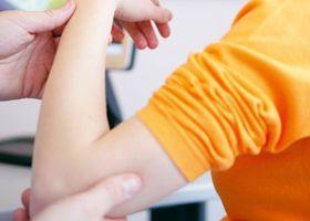 Прояви м`язової слабкості