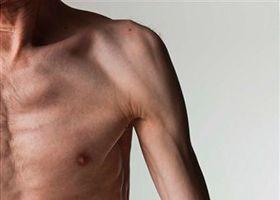 Слабкість м`язів у літньої людини