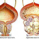 Захворювання аденома передміхурової залози