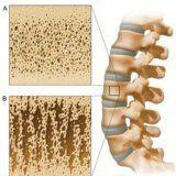 Захворювання опорно-рухового апарату людини