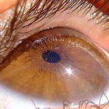 Захворювання зовнішньої сітківки ока