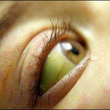 Жовті білки очей причини