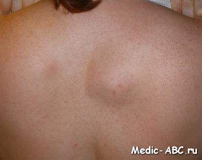 Жировики: причини появи, способи позбавлення та лікування народними методами