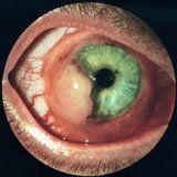 Злоякісні пухлини очного яблука