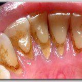 Зубний камінь видалення в домашніх умовах